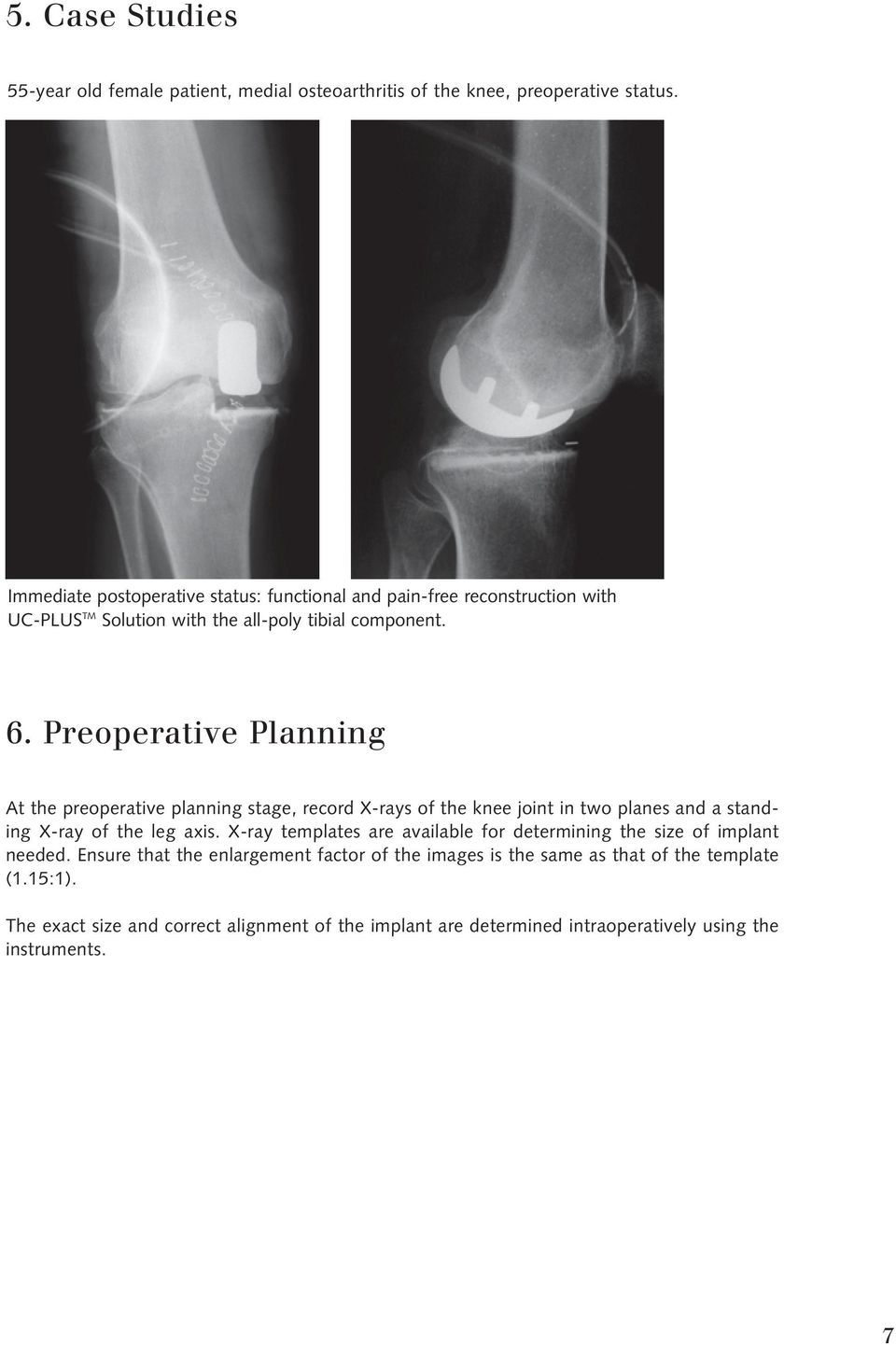 Preoperative Planning At the preoperative planning stage, record X-rays of the knee joint in two planes and a standing X-ray of the leg axis.