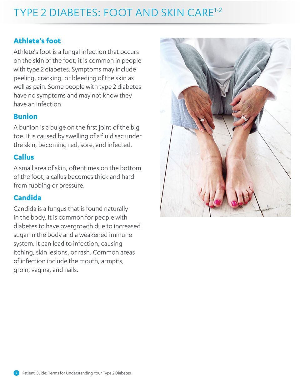 Bunion A bunion is a bulge on the first joint of the big toe. It is caused by swelling of a fluid sac under the skin, becoming red, sore, and infected.