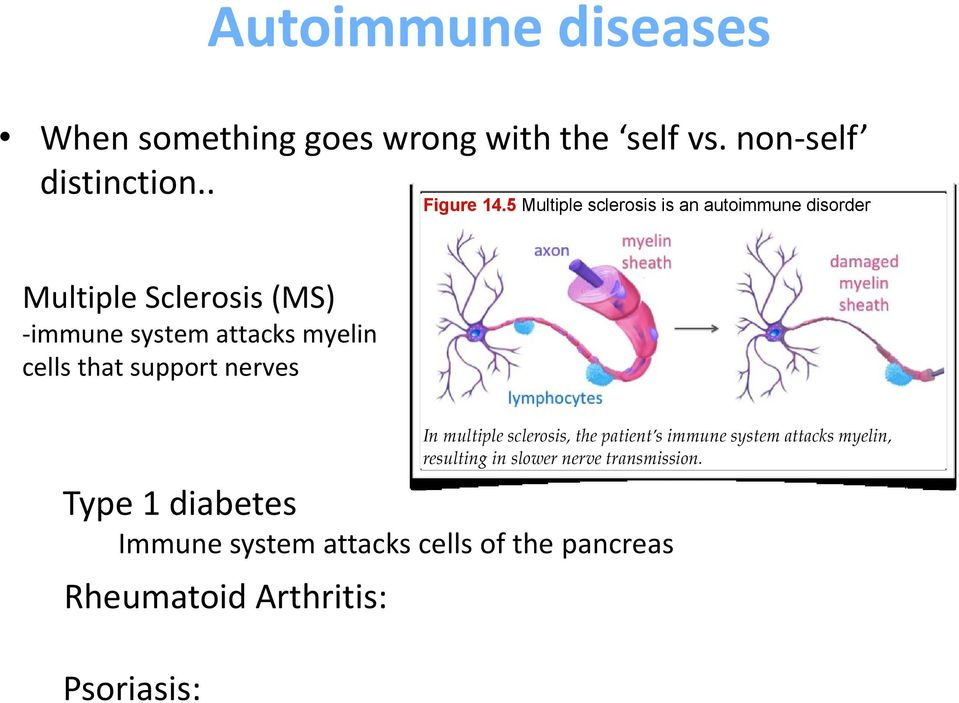 cells that support nerves In multiple sclerosis, the patient s immune system attacks myelin, resulting in