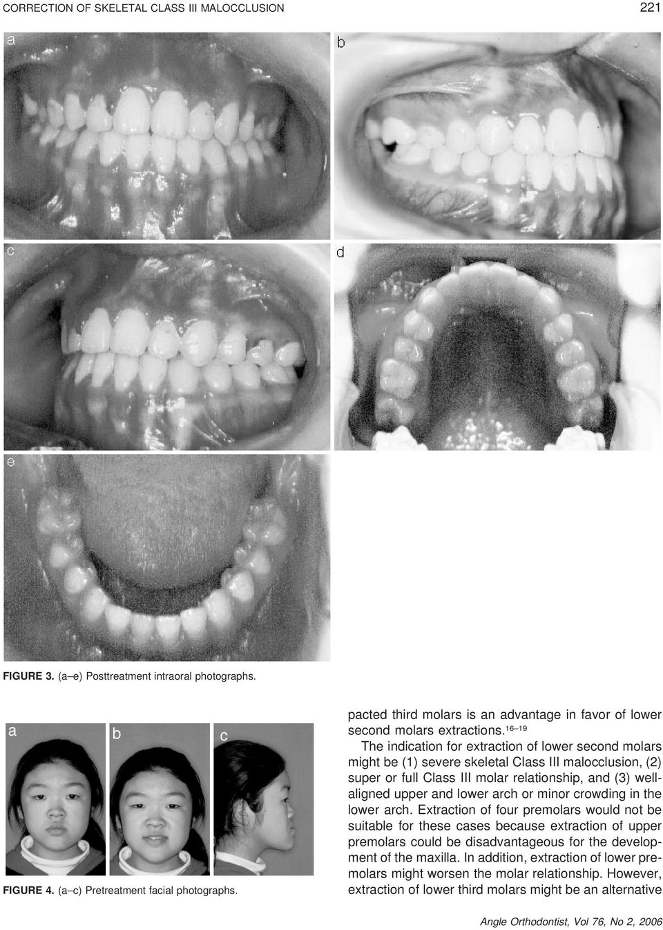 16 19 The indication for extraction of lower second molars might be (1) severe skeletal Class III malocclusion, (2) super or full Class III molar relationship, and (3) wellaligned upper and lower