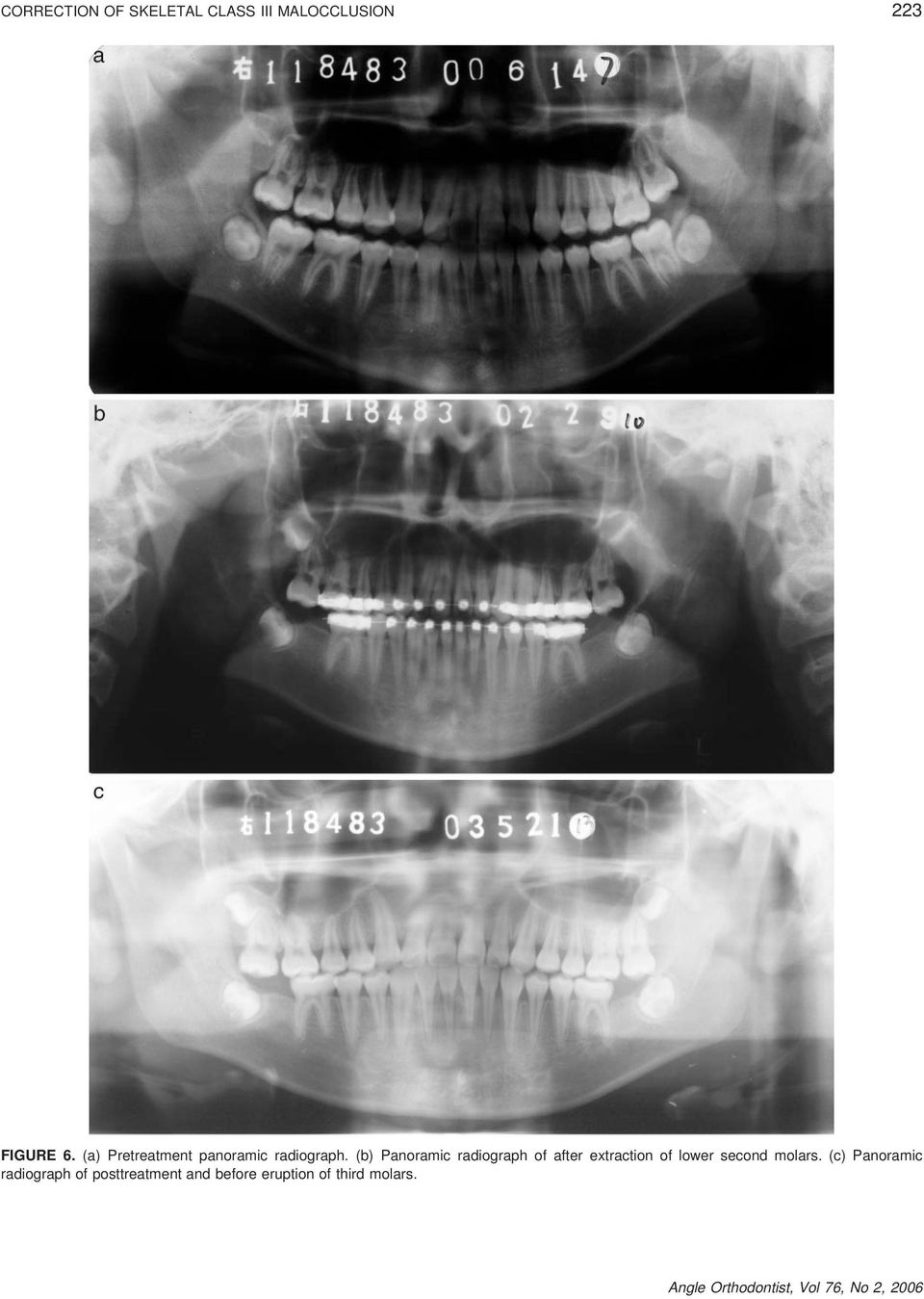 (b) Panoramic radiograph of after extraction of lower second