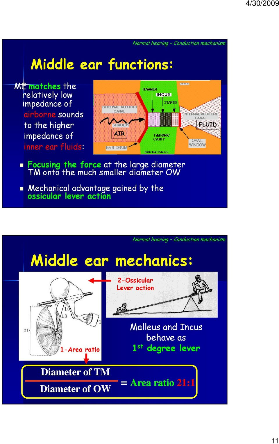 OW Mechanical advantage gained by the ossicular lever action Normal hearing Conduction mechanism Middle ear mechanics: