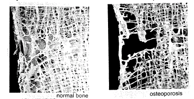 6. The figure below compares normal bone with bone affected by a disease called osteoporosis. A) What is osteoporosis? B) List several symptoms of osteoporosis.