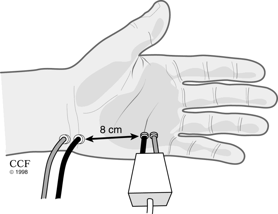 Mixed NCS Palmar record over wrist Median and ulnar Both motor and sensory fibers present