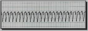 Cardiac Arrhythmias Pulseless Rhythms Ventricular Fibrillation Ventricular Fibrillation (V-Fib or VF) is the most common rhythm that occurs immediately after cardiac arrest.