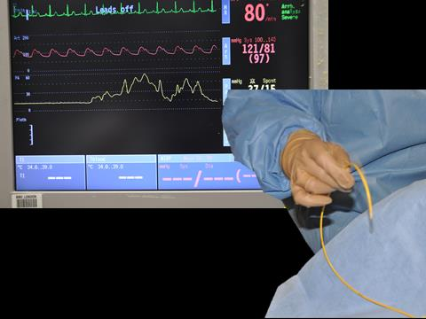 Wiggle (physician) Swan Ganz to ensure artifact tracing appears on Datex monitor (ensuring you can view waveform during insertion). Observe monitor for arrhythmias during insertion.