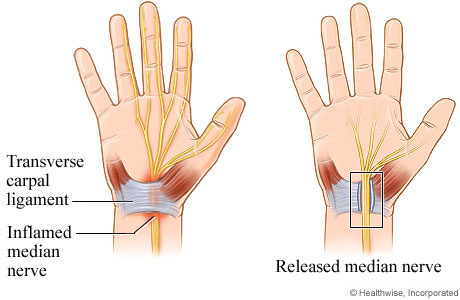 The carpal tunnel is a narrow space in the wrist. It contains wrist bones and a ligament (transverse carpal ligament) across the wrist where the palm and forearm meet.