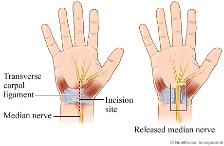 Carpal tunnel release surgery is used to reduce the pressure on the median nerve in the wrist. This is done by cutting the ligament that forms the top of the carpal tunnel.