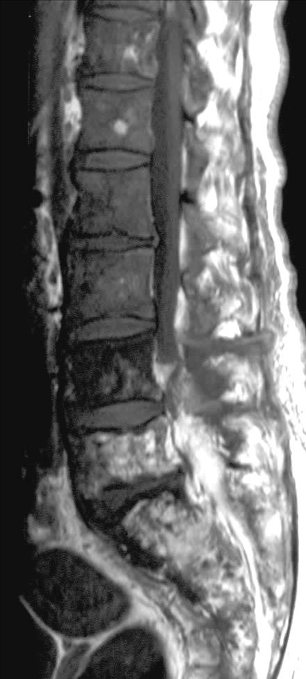 Diffuse marrow fibrosis: vertebral enlargement Paget s disease patchy reduction of marrow SI late stage of