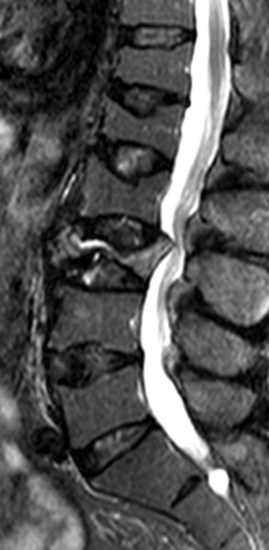 Marrow Oedema vertebral collapse Benign vs pathological: residual fatty marrow no ST