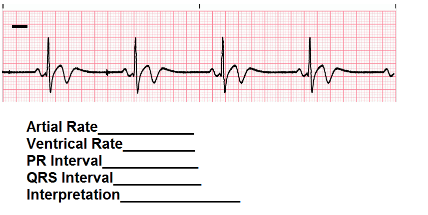 Introduction The major ECG rhythms classified as bradycardia include: 1. Sinus Bradycardia 2. First-degree AV block 3. Second-degree AV block 4. Type I Wenckenbach/Mobitz I 5. Type II Mobitz II 6.