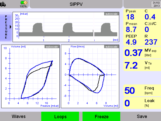 Features Grafics: Waves: Freeze: Loops: Trends: Save Loop: Displays 3 waveforms, Pressure, Flow and Volume simultaneously Freezes the Waves or Loops Pressure-Volume and