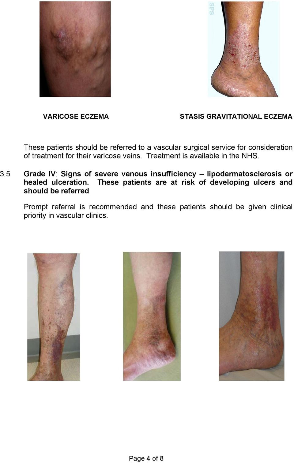 5 Grade IV: Signs of severe venous insufficiency lipodermatosclerosis or healed ulceration.