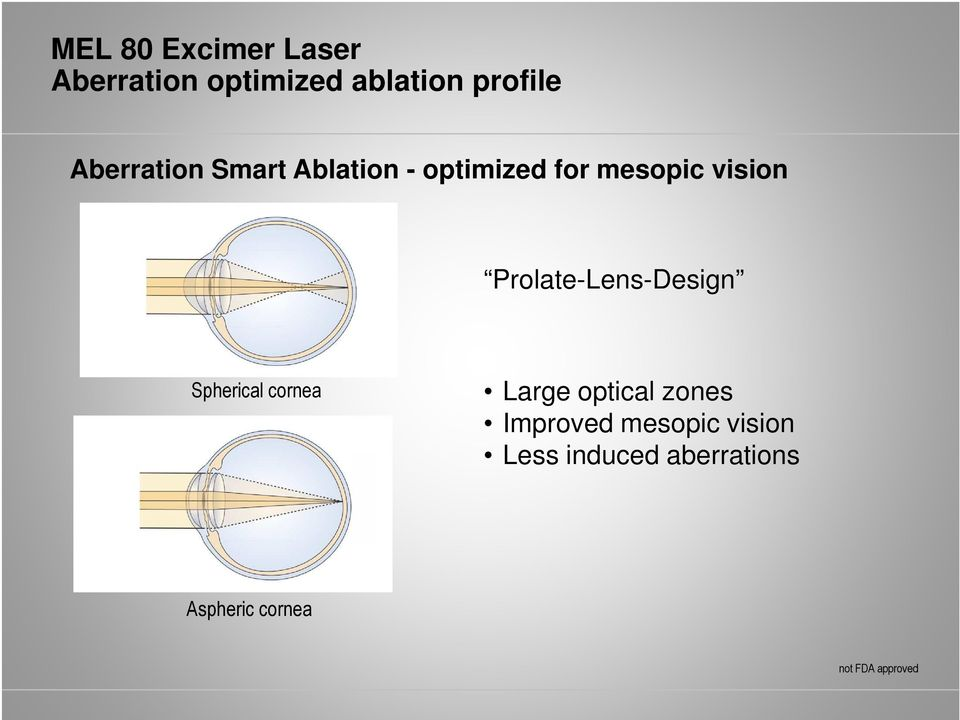 Prolate-Lens-Design Spherical cornea Large optical zones