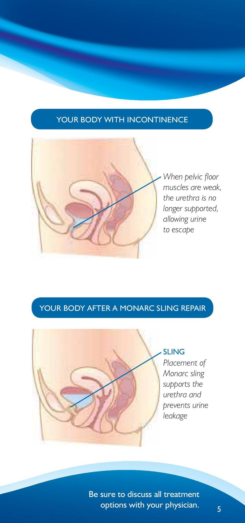 SLING REPAIR SLING Placement of Monarc sling supports the urethra and