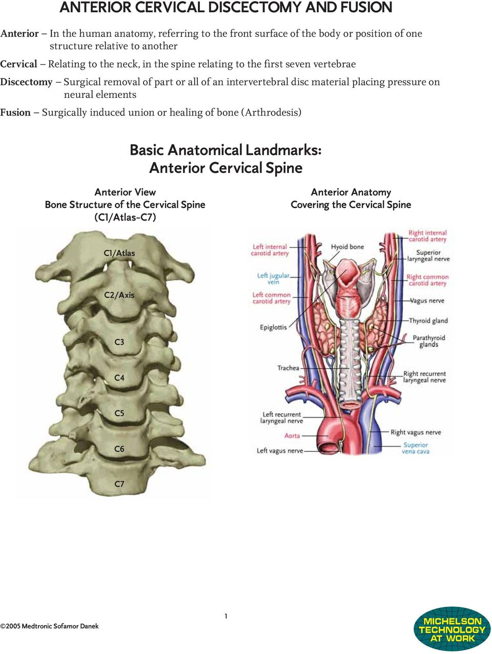 Anterior Cervical Discectomy And Fusion Basic Anatomical Landmarks