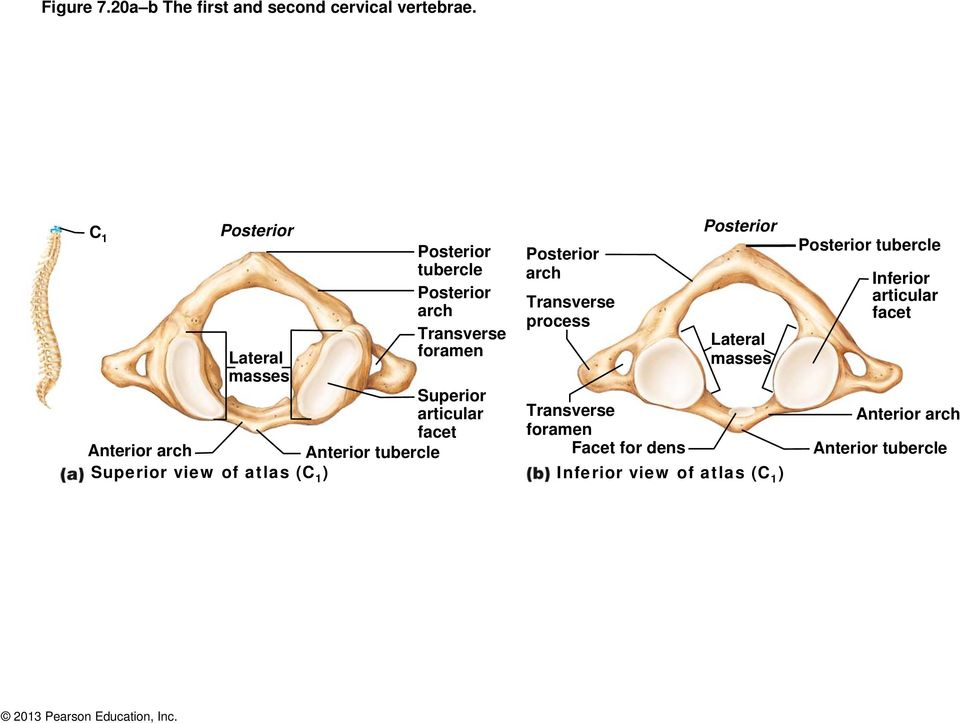 atlas (C 1 ) Posterior tubercle Posterior arch Transverse foramen Posterior arch Transverse Posterior