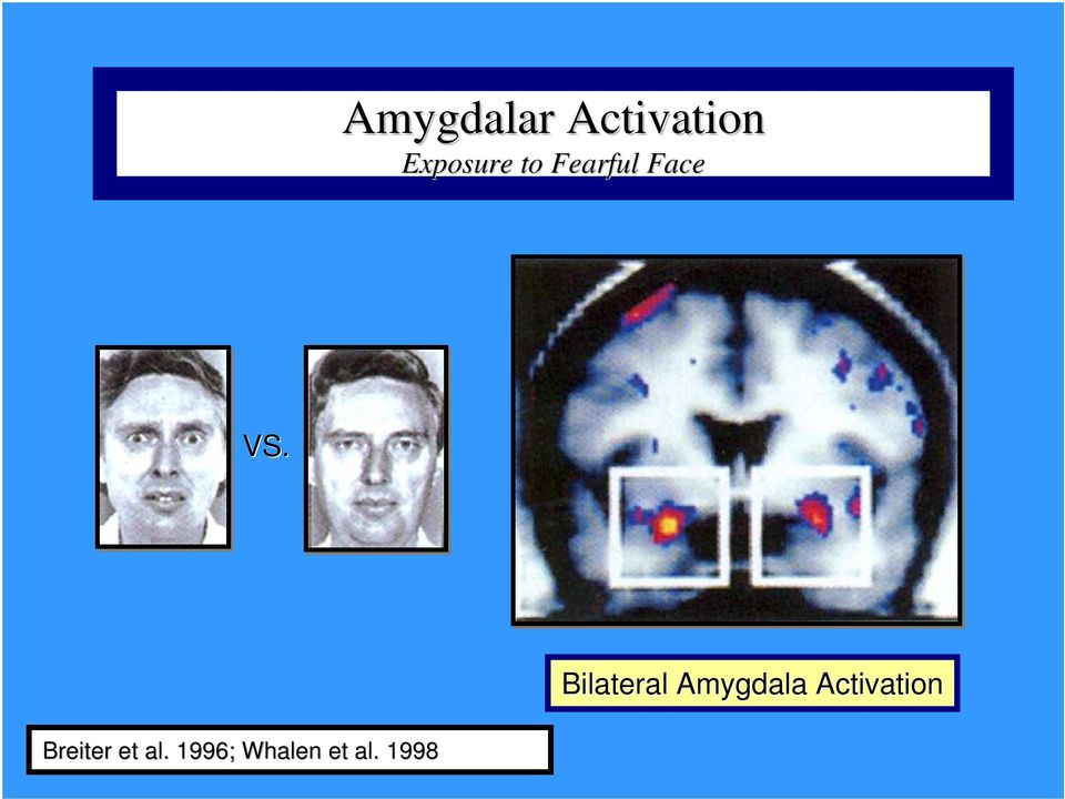 Bilateral Amygdala Activation