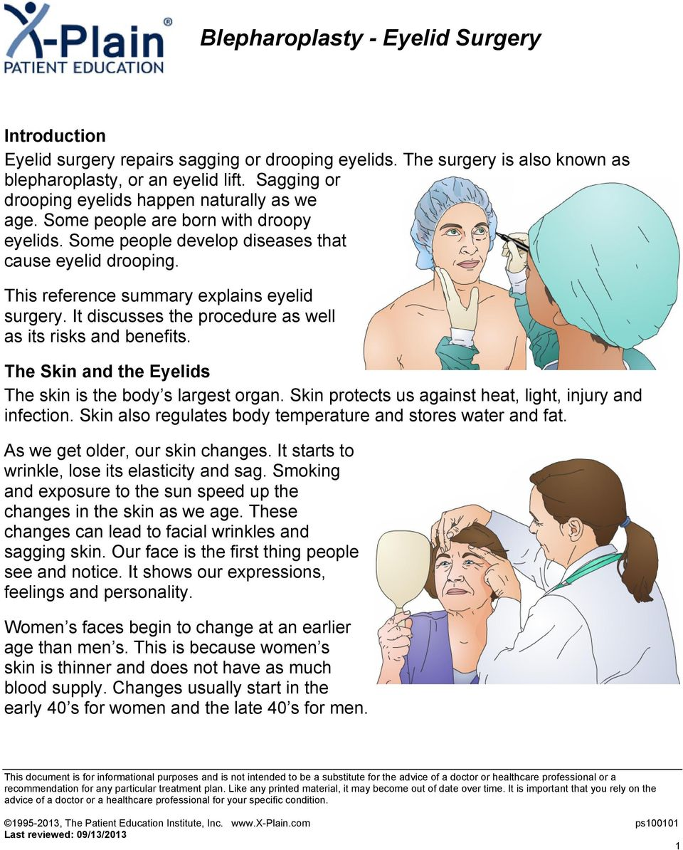 This reference summary explains eyelid surgery. It discusses the procedure as well as its risks and benefits. The Skin and the Eyelids The skin is the body s largest organ.
