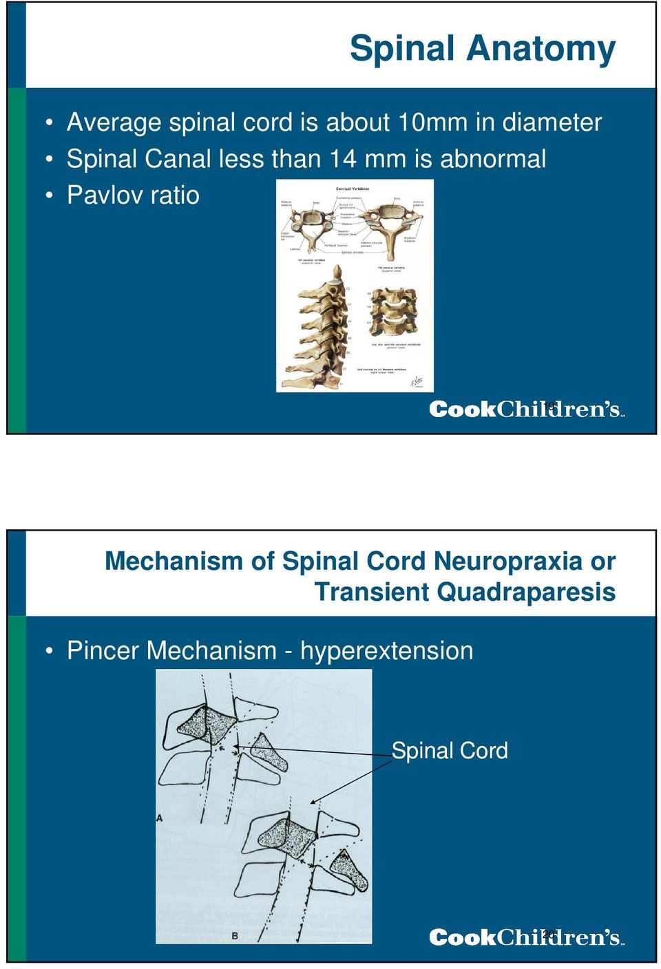 ratio 19 Mechanism of Spinal Cord Neuropraxia or Transient