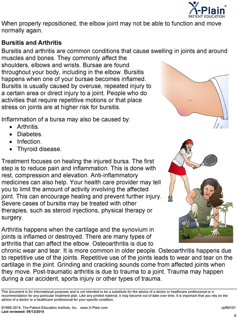 Bursae are found throughout your body, including in the elbow. Bursitis happens when one of your bursae becomes inflamed.