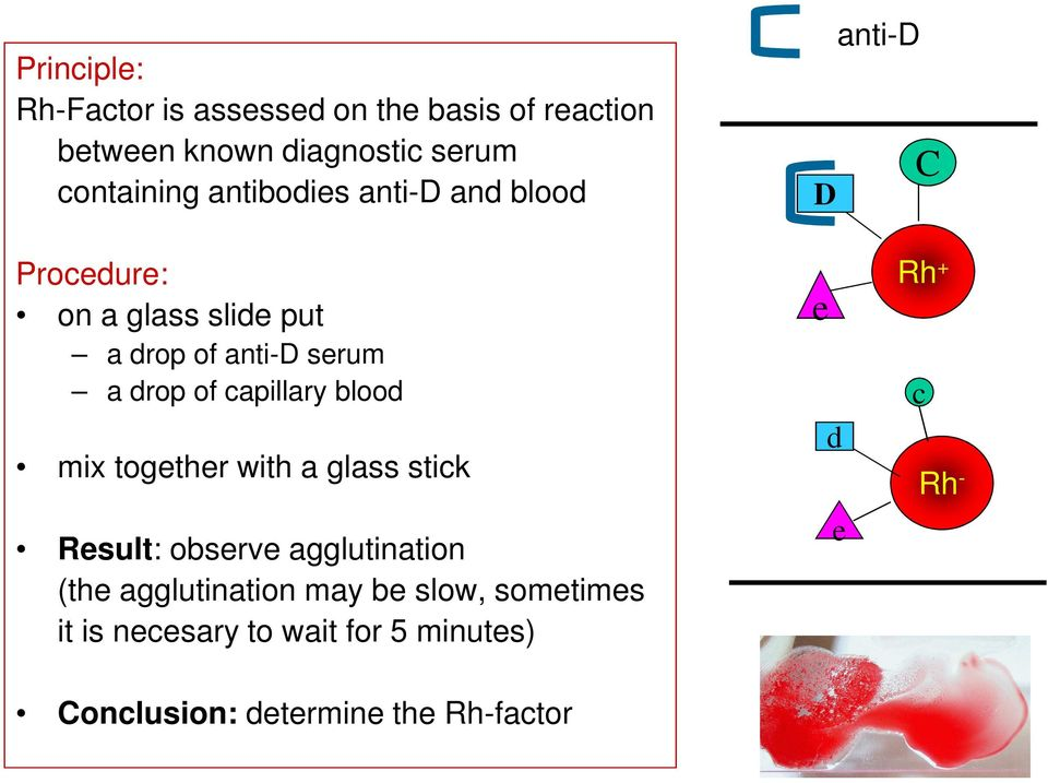 capillary blood mix together with a glass stick Result: observe agglutination (the agglutination may