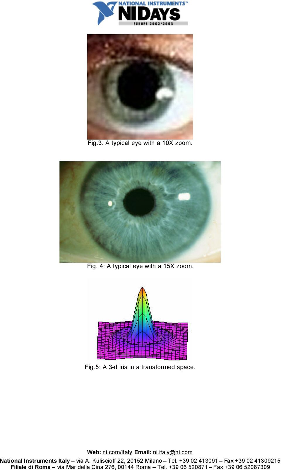 4: A typical eye with a 15X