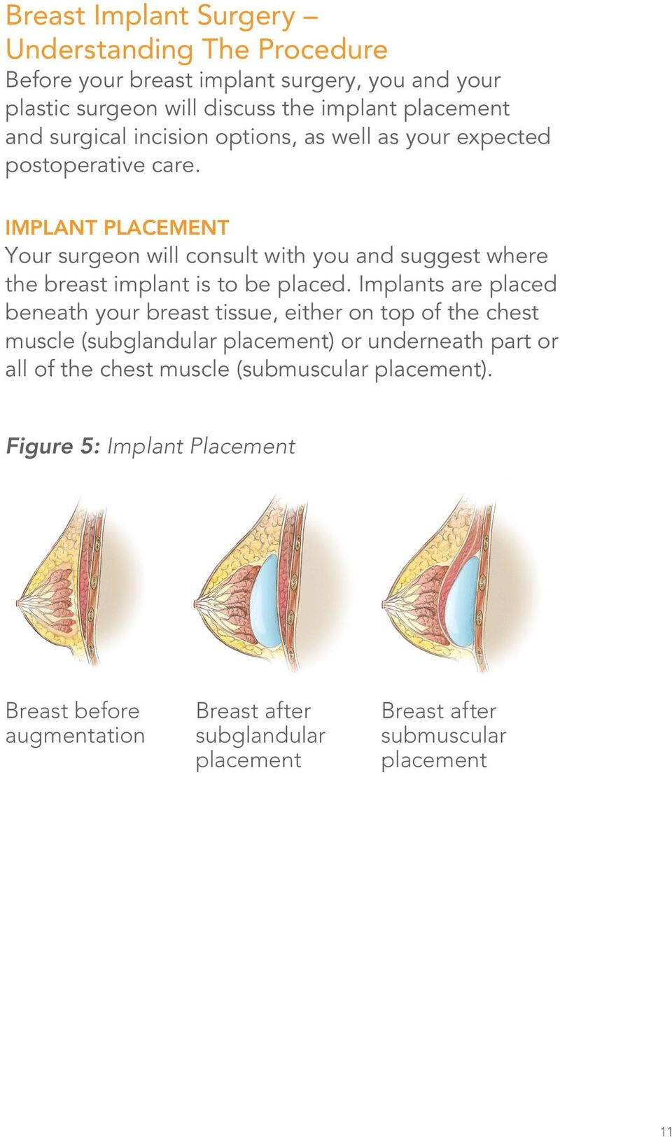 IMPLANT PLACEMENT Your surgeon will consult with you and suggest where the breast implant is to be placed.
