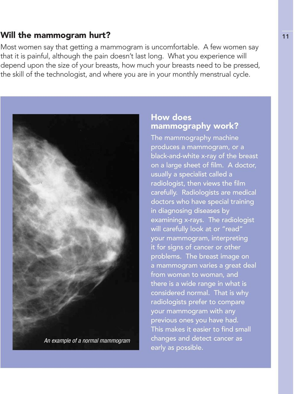 11 An example of a normal mammogram How does mammography work? The mammography machine produces a mammogram, or a black-and-white x-ray of the breast on a large sheet of film.