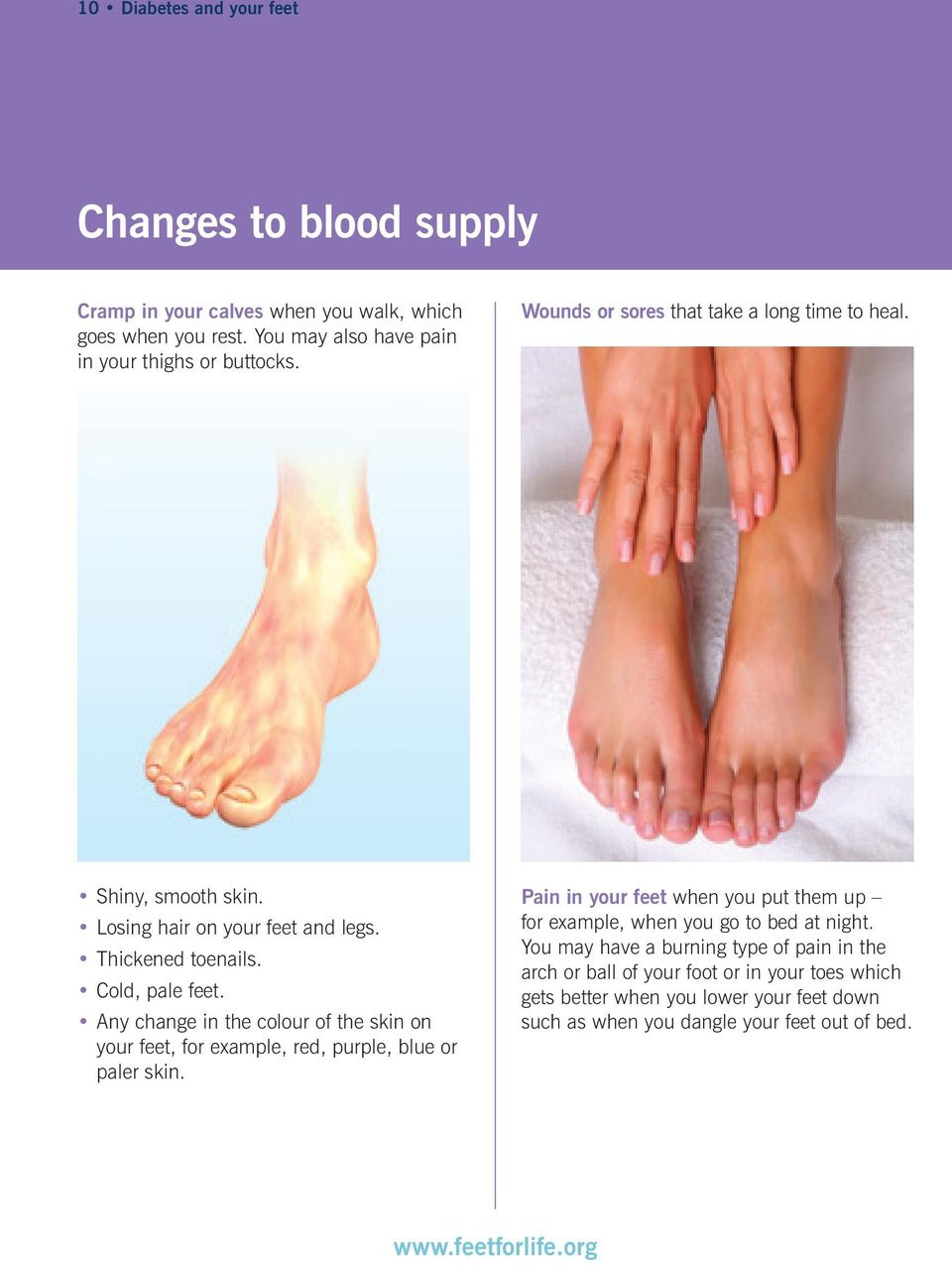 Any change in the colour of the skin on your feet, for example, red, purple, blue or paler skin.