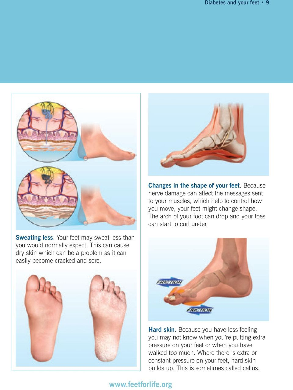 The arch of your foot can drop and your toes can start to curl under. Sweating less. Your feet may sweat less than you would normally expect.