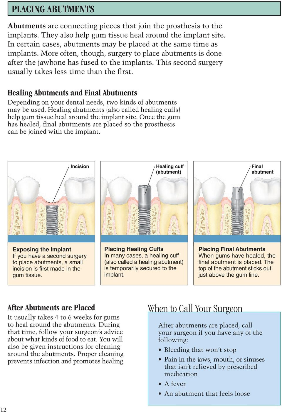 This second surgery usually takes less time than the first. Healing Abutments and Final Abutments Depending on your dental needs, two kinds of abutments may be used.