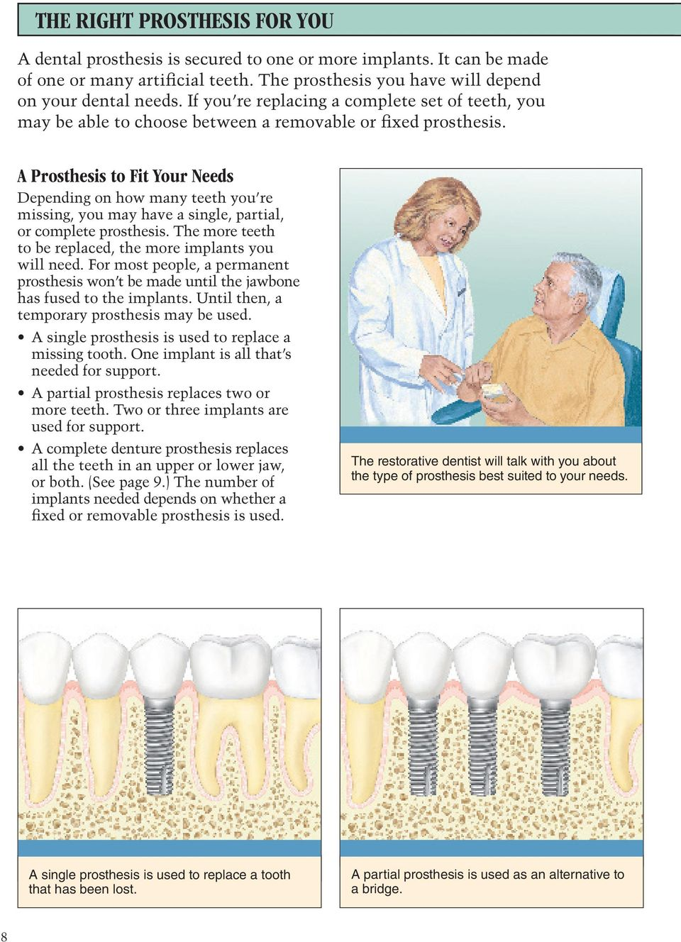 A Prosthesis to Fit Your Needs Depending on how many teeth you re missing, you may have a single, partial, or complete prosthesis. The more teeth to be replaced, the more implants you will need.