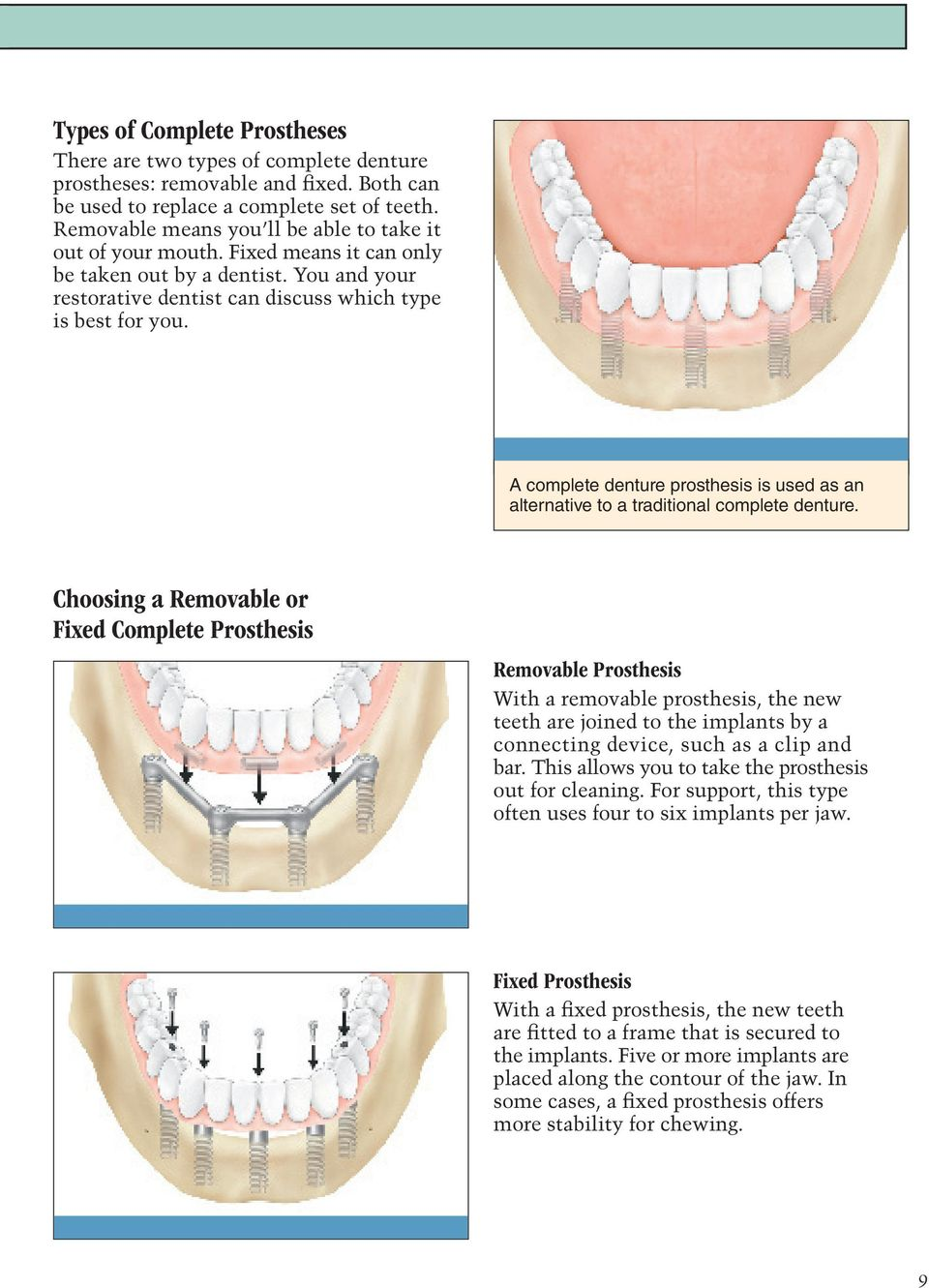 A complete denture prosthesis is used as an alternative to a traditional complete denture.