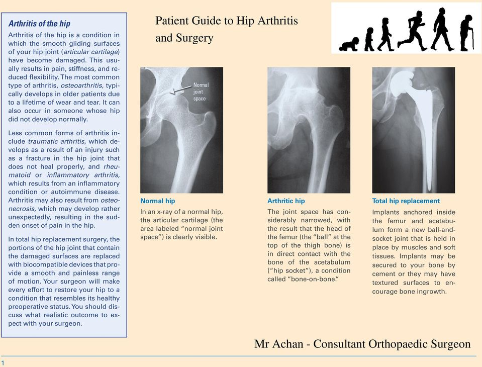 It can also occur in someone whose hip did not develop normally.