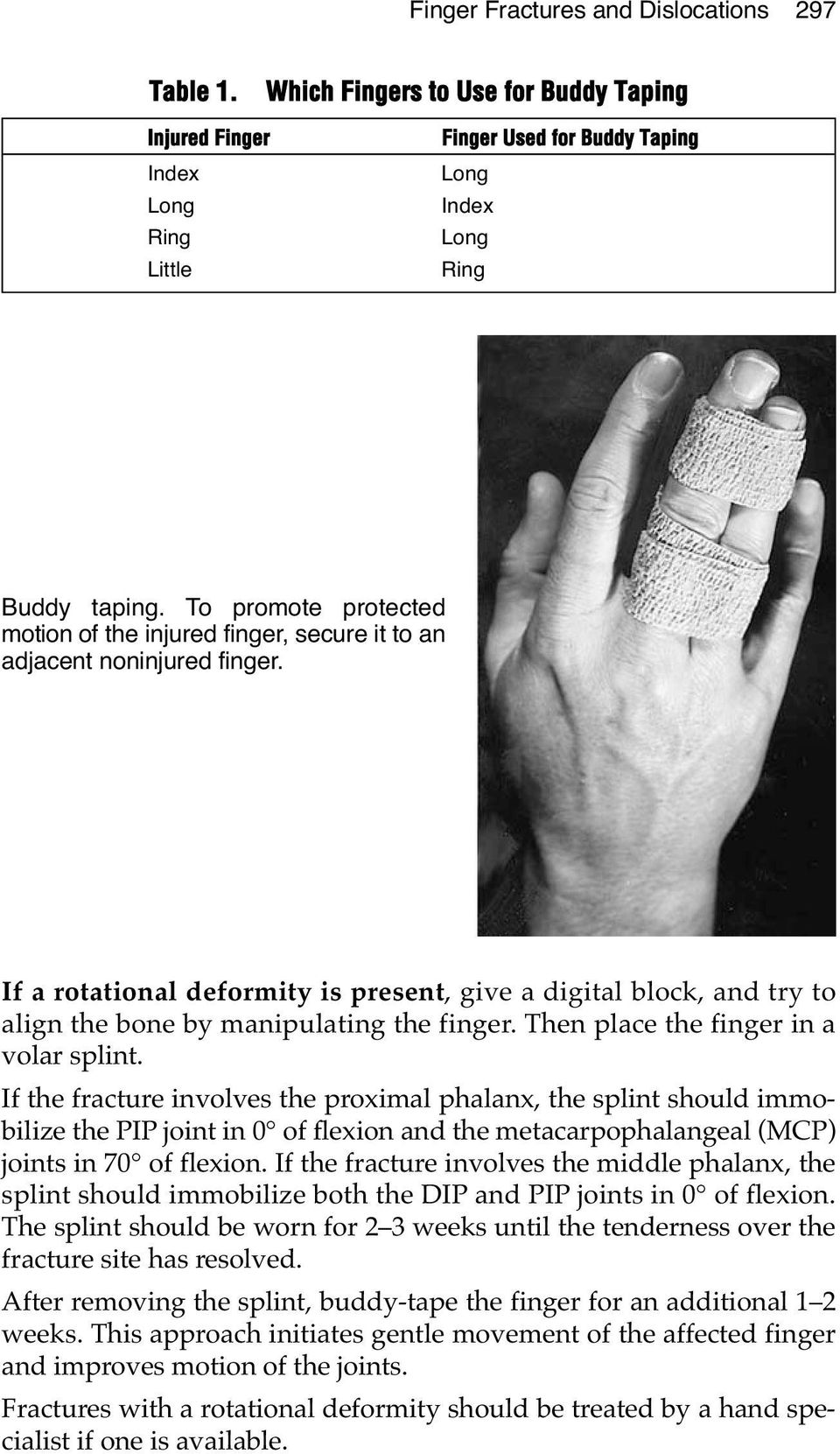 If a rotational deformity is present, give a digital block, and try to align the bone by manipulating the finger. Then place the finger in a volar splint.