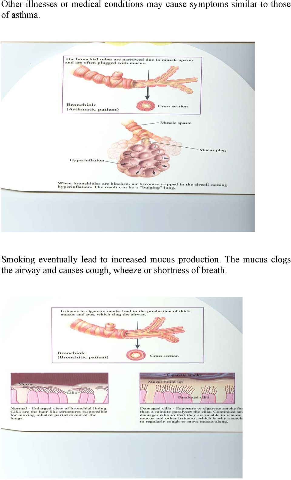 Smoking eventually lead to increased mucus production.