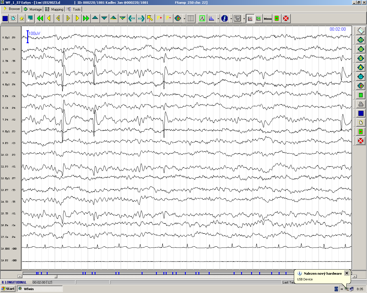EEG recording of electric activity of the brain Focal or generalized epileptiform discharges