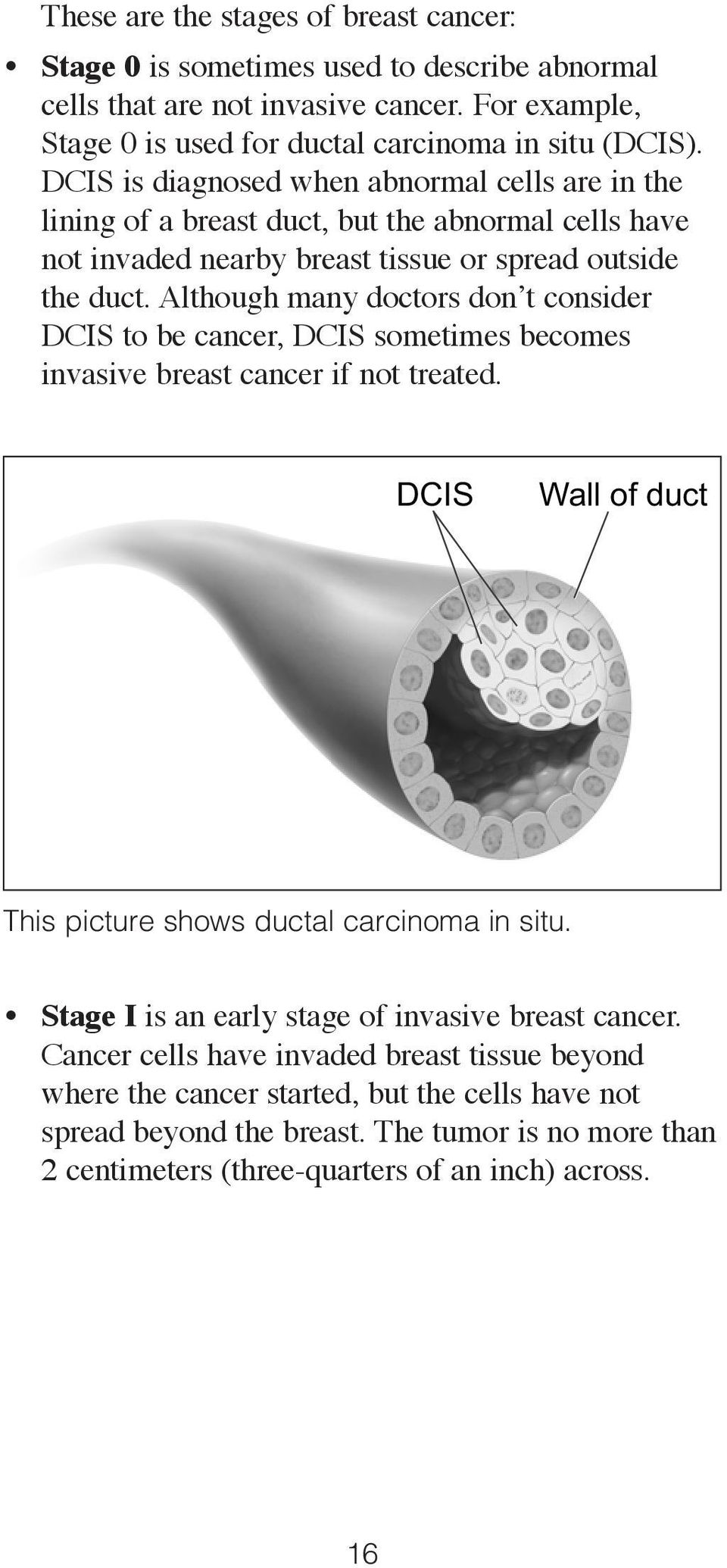 Although many doctors don t consider DCIS to be cancer, DCIS sometimes becomes invasive breast cancer if not treated. DCIS Wall of duct This picture shows ductal carcinoma in situ.
