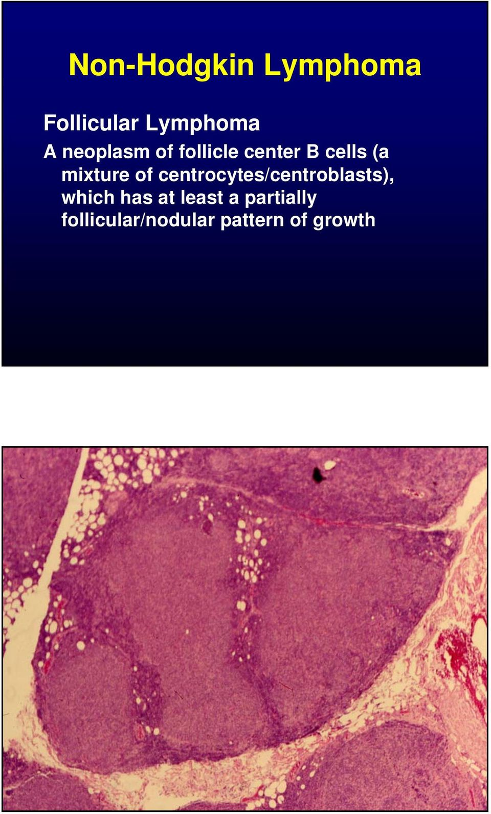 of centrocytes/centroblasts), which has at