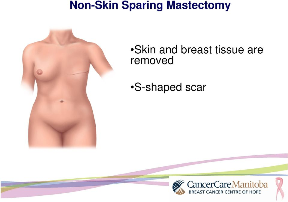 and breast tissue