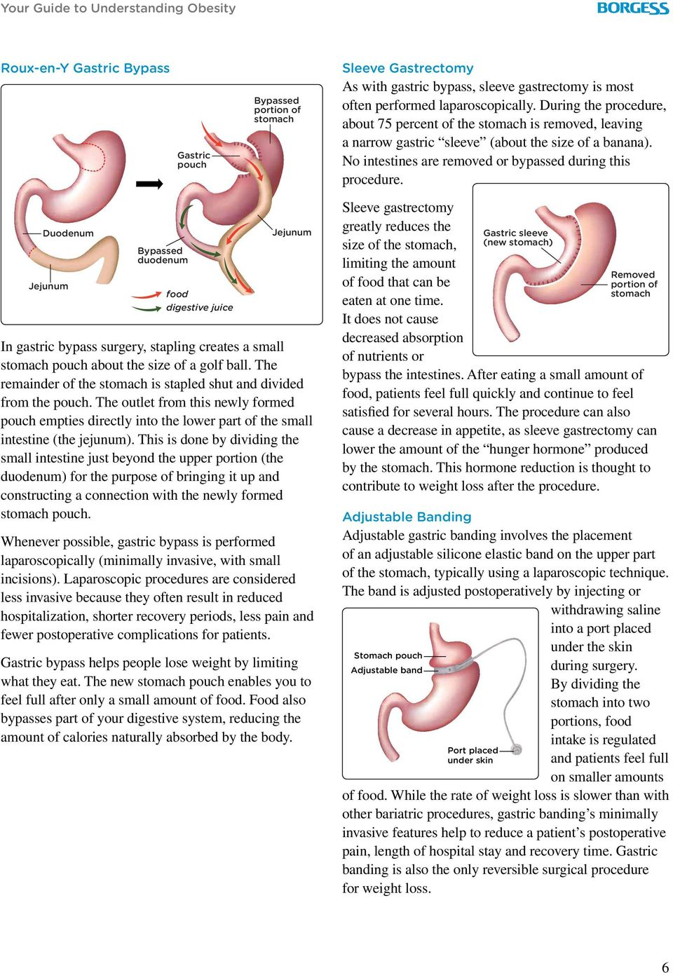 Duodenum Jejunum Bypassed duodenum food digestive juice Jejunum In gastric bypass surgery, stapling creates a small stomach pouch about the size of a golf ball.