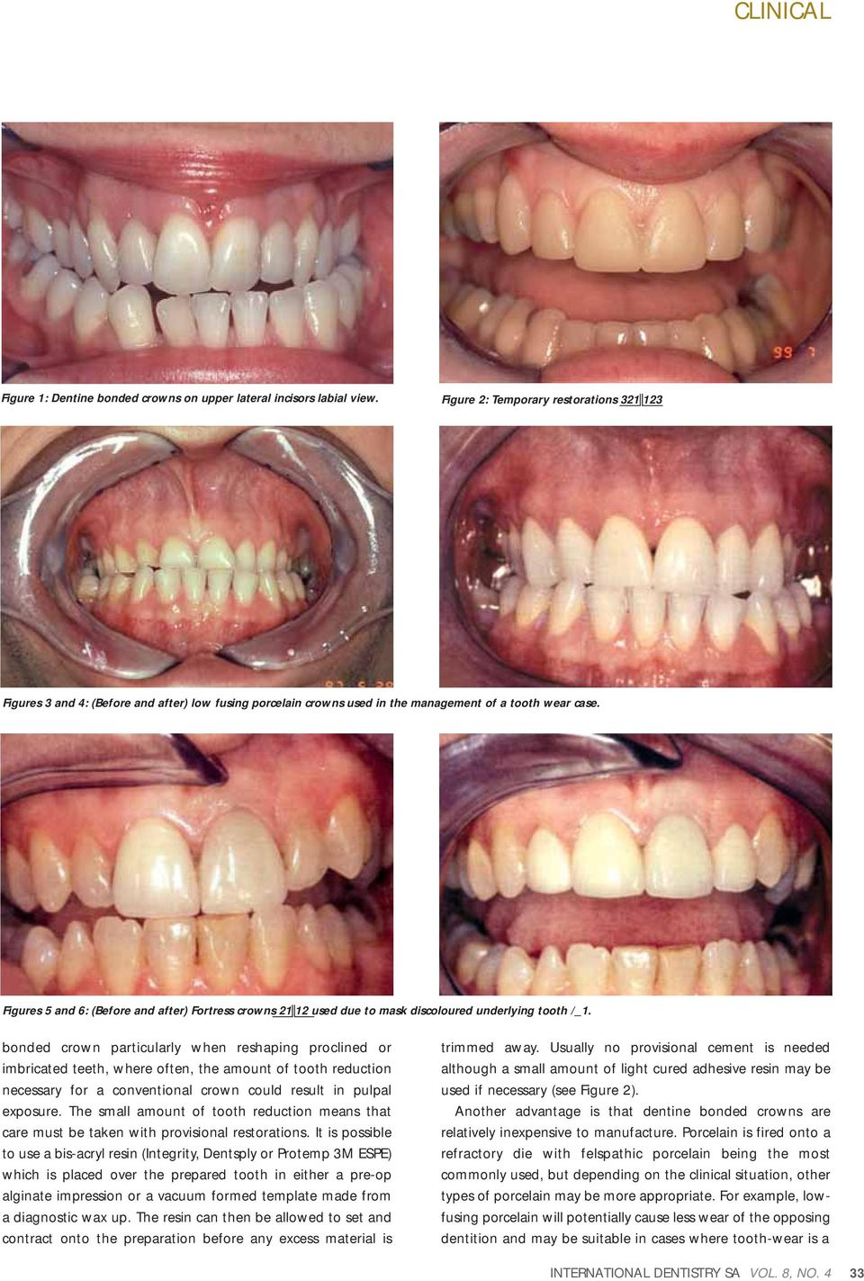 Figures 5 and 6: (Before and after) Fortress crowns 21 12 used due to mask discoloured underlying tooth / _ 1.