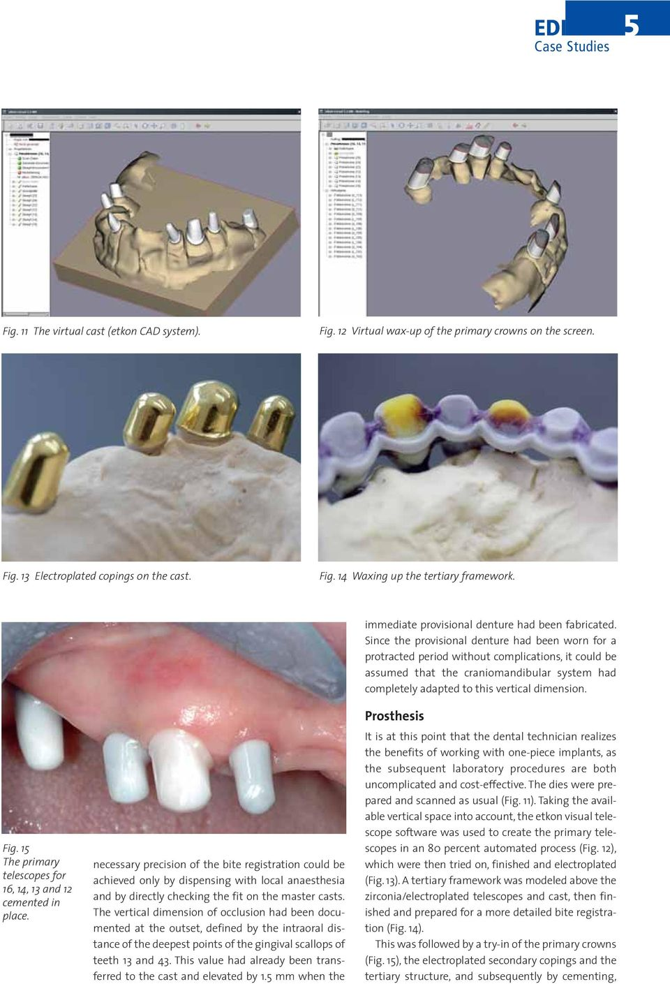The vertical dimension of occlusion had been documented at the outset, defined by the intraoral distance of the deepest points of the gingival scallops of teeth 13 and 43.