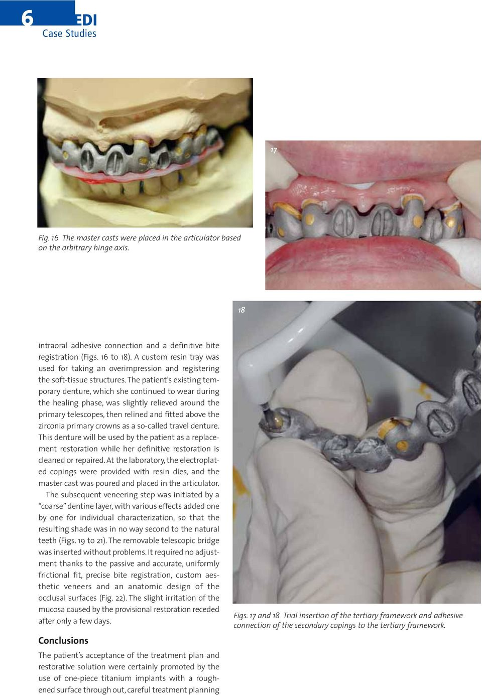 The patient s existing temporary denture, which she continued to wear during the healing phase, was slightly relieved around the primary telescopes, then relined and fitted above the zirconia primary
