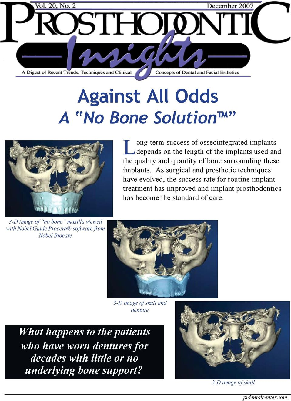 As surgical and prosthetic techniques have evolved, the success rate for routine implant treatment has improved and implant prosthodontics has become