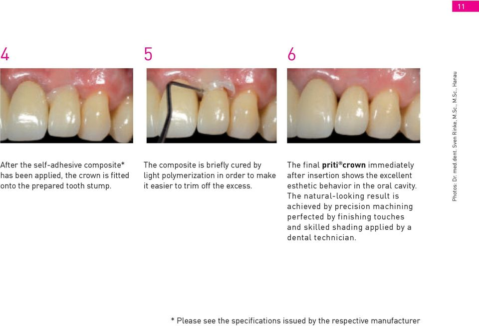 The final priti crown immediately after insertion shows the excellent esthetic behavior in the oral cavity.