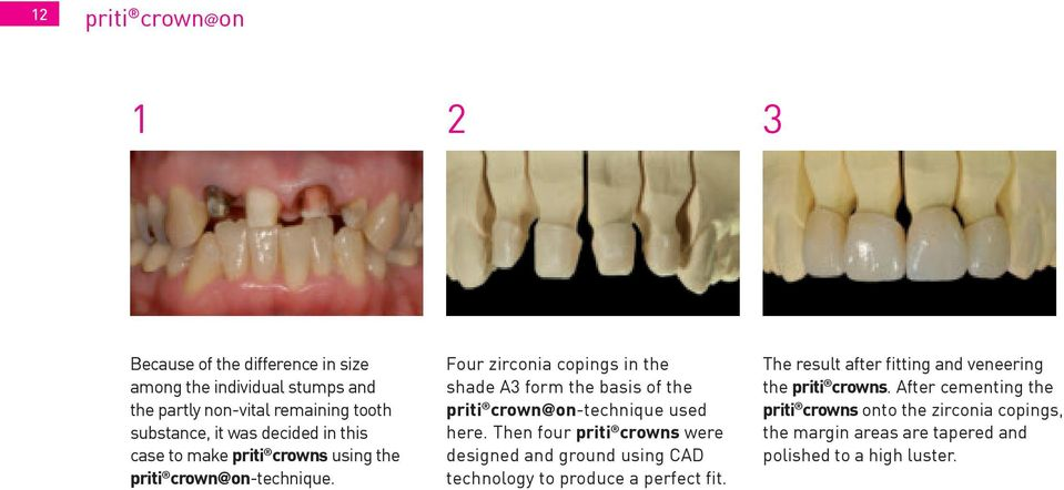 Four zirconia copings in the shade A3 form the basis of the priti crown@on-technique used here.