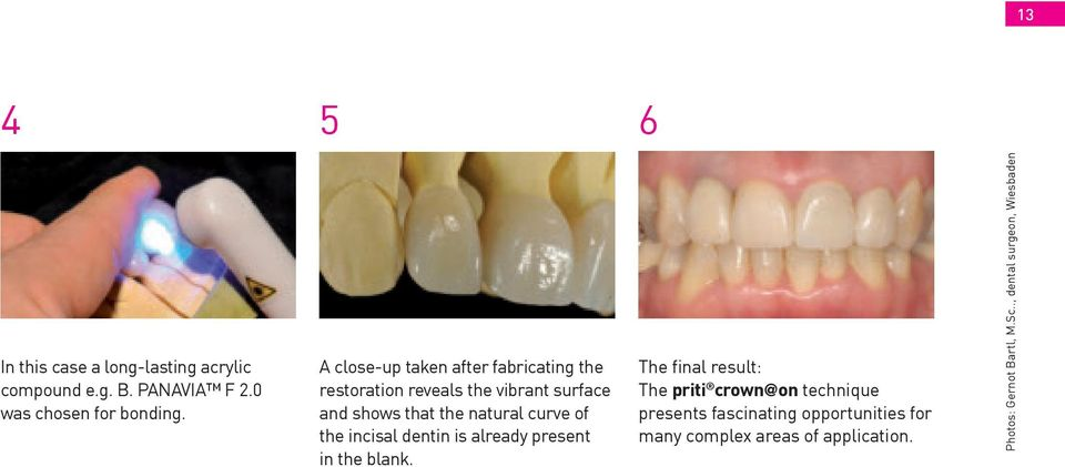 curve of the incisal dentin is already present in the blank.