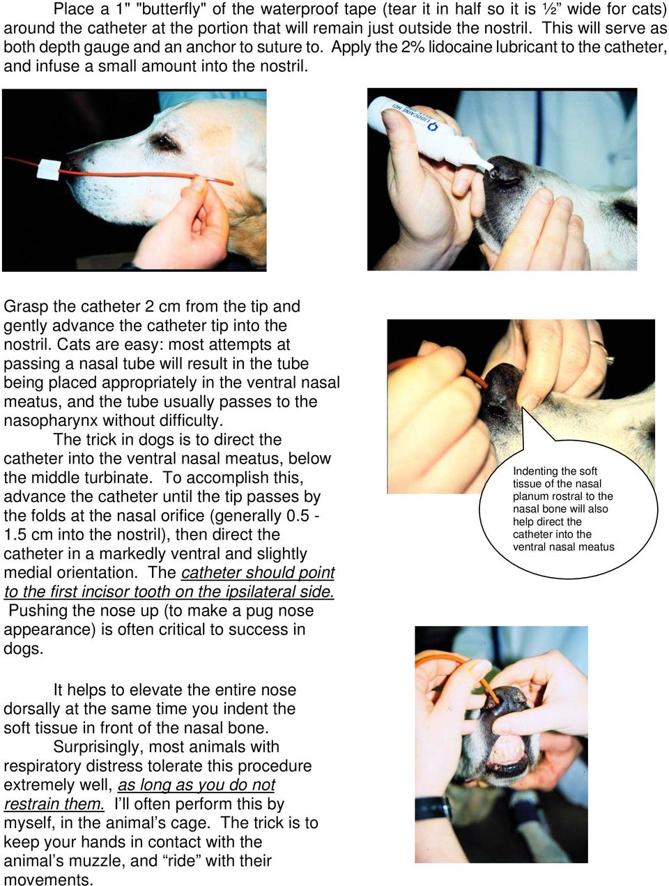 Grasp the catheter 2 cm from the tip and gently advance the catheter tip into the nostril.